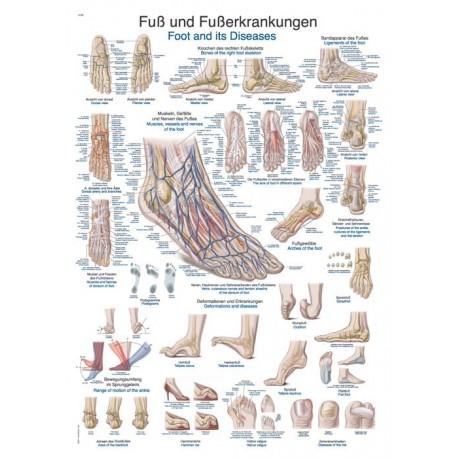 Planche anatomique du pied et maladie du pied